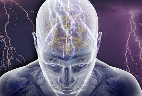 epilepsy-s1-illustration-of-seizure